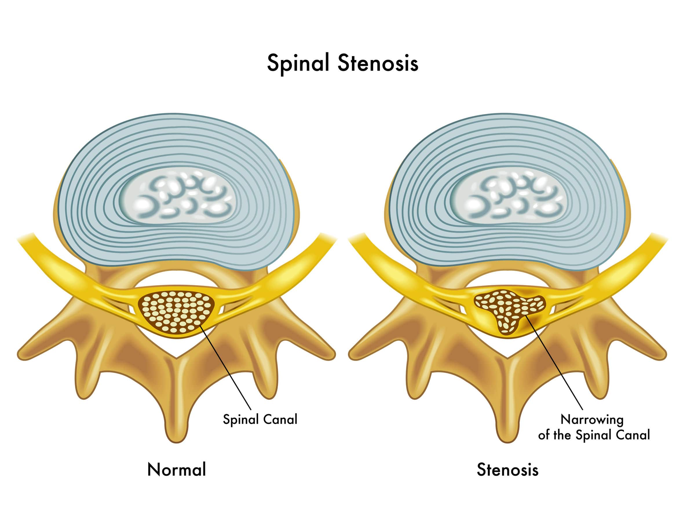 Image of Spinal Stenosis