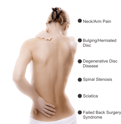 Woman with back pain symptoms